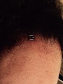 Forehead Staples