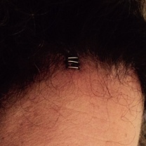 Forehead Staples