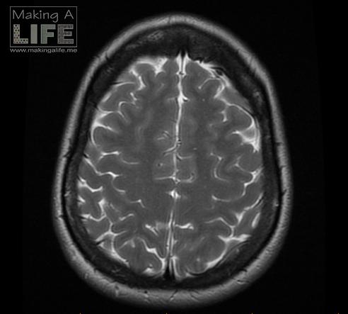 My Brain 1